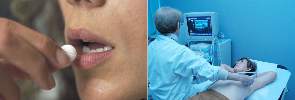 Chemotherapy Mammography