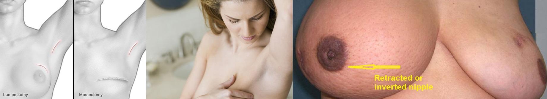 Lumpectomy and Mastectomy 1
